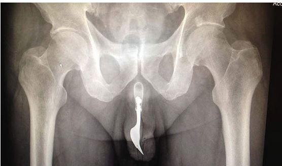 Radiografia forchetta infilata dentro il pene