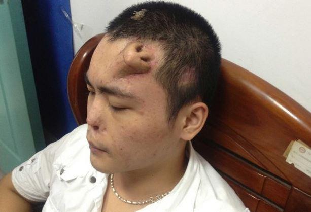 Naso artificiale cresce sulla fronte di Xiaolian