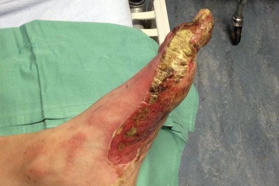 piede ustionato dal deodorante