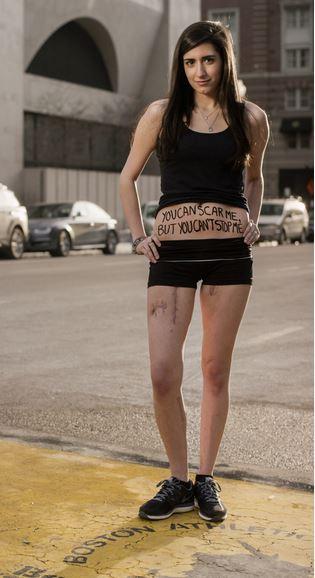 Sydney Corcoran sopravvissuta all'attentato Maratona di Boston