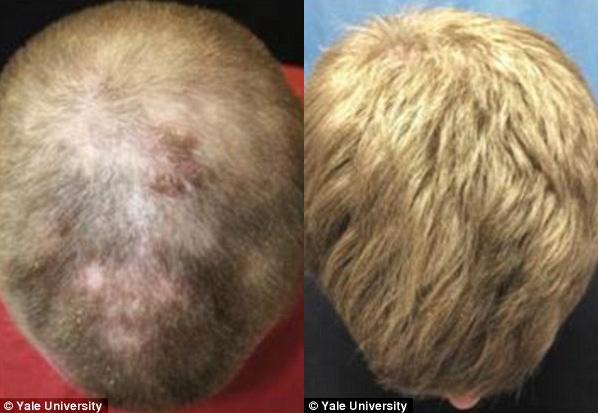 Ricrescita capelli con farmaco per l'artrite