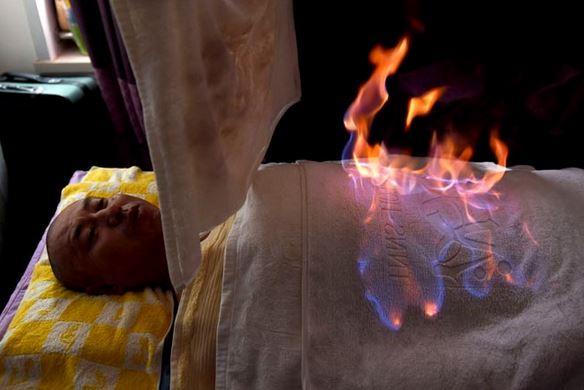 Terapia di fuoco, praticata in Cina simile alla coppettazione