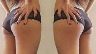 """L'estate per molte donne può essere il vaso di Pandora di tutte le ansie causate dall'immagine del corpo. Fuori fa caldo ciò significa pantaloncini, gonne e gambe in bella vista. La preoccupazione nasce dall'ossessione femminile per il """"divario coscia"""" (è uno spazio tra l'interno cosce delle donne quando si mettono […]"""