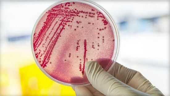 Nuvola di microbi