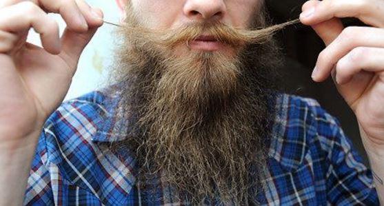 Barba trapianto
