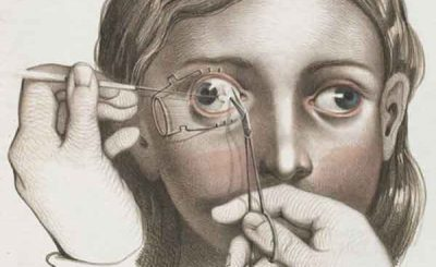 Chirurgia nel 1800 illustrazioni