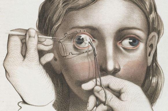 Illustrazioni interventi chirurgici nel 1800