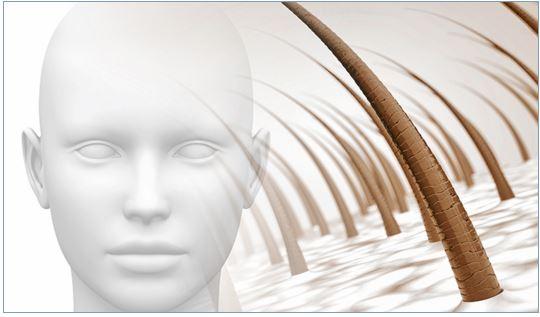 alopecia areata ragazza cura