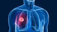 Il nuovo studio di un particolare farmaco antitumorale ha dimostrato la sua efficacia nel ridurre o eradicare i tumori in pazienti con carcinoma che era stato resistente a ogni altra forma di trattamento. Lo studio, pubblicato sulla rivista Science, ha coinvolto 86 pazienti che avevano il cancro avanzato del pancreas, […]