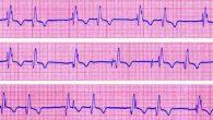 Hai un problema cardiaco? Probabilmente no, ma soprattutto per le persone di età superiore ai sessanta anni le palpitazioni cardiache, fluttuazioni e simili possono essere segni di potenziali problemi cardiaci. Le aritmie cardiache sono difficili da individuare: in genere possono essere rilevate solo da un medico addestrato a esaminare un […]