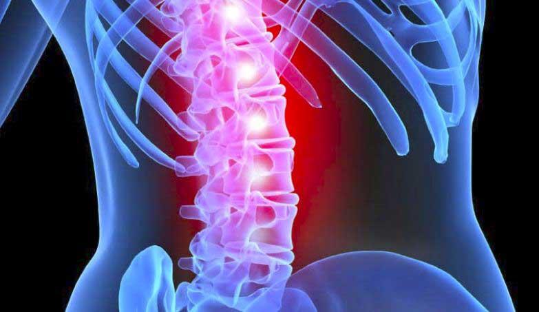 Midollo spinale lesione