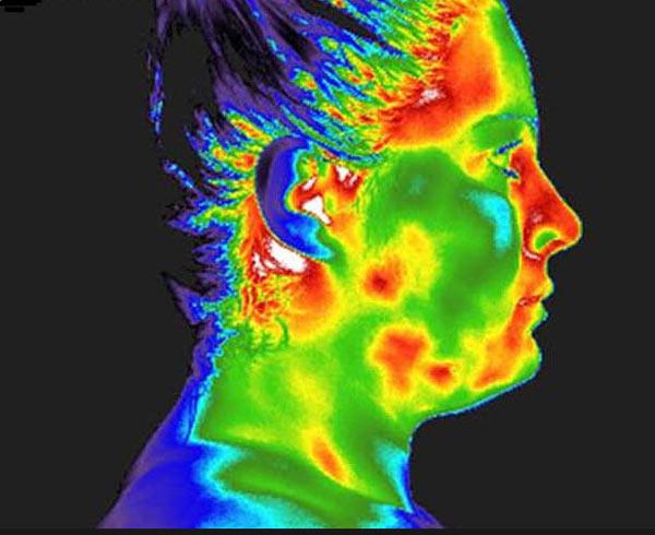 Termografia facciale