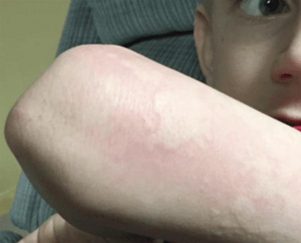 Orticaria sintomo influenza
