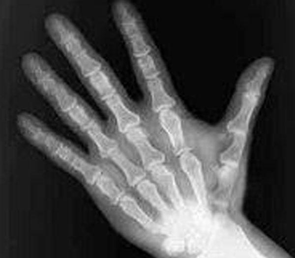 mano radiografia