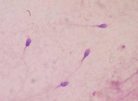 Nuovi test per misurare la fertilità maschile