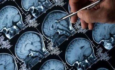 Alzheimer cura