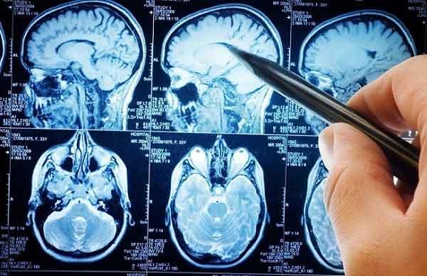 Cervello risonanza magnetica 100 ore 7 Tesla