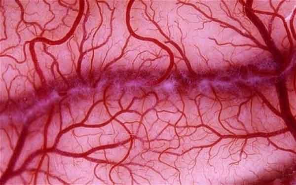 Vasi sanguigni artificiali