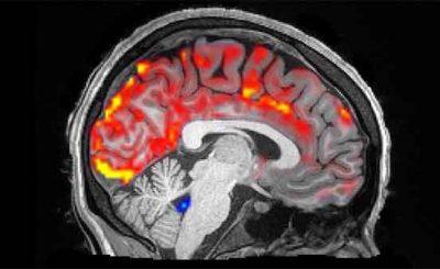 Cervello liquido spinale