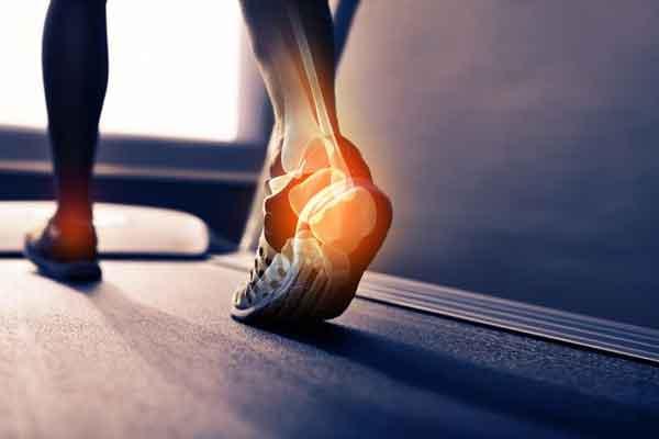 Ipermobilità articolare