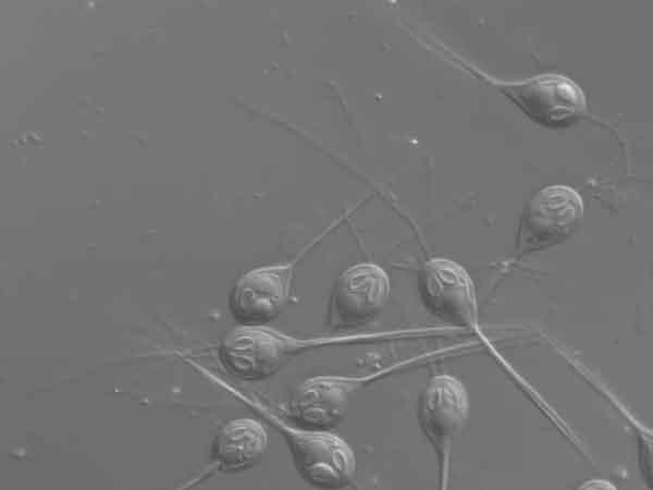 parassita Henneguya salminicola