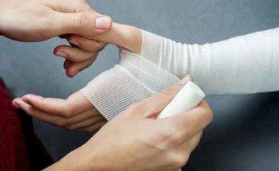 Bende rivestite al plasma guarigione ferite croniche