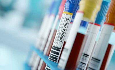 Cura coronavirus Covid-19